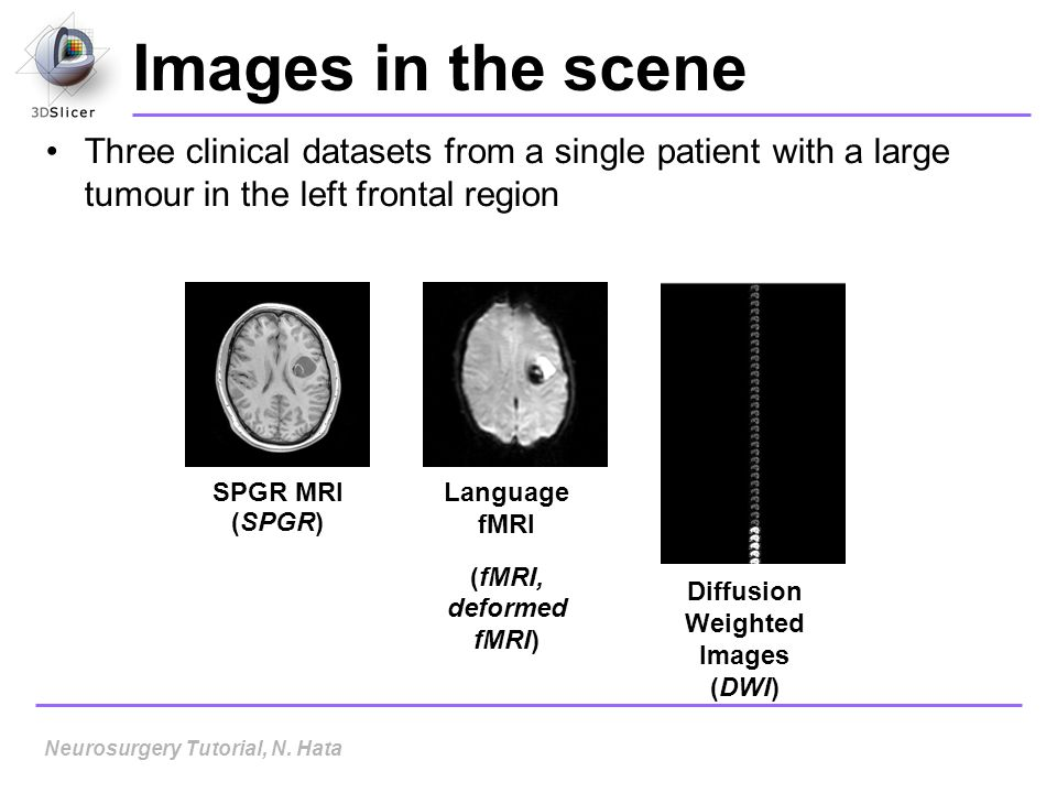 Images in the scene Three clinical datasets from a single patient with a large tumour in the left frontal region SPGR MRI (SPGR) Language fMRI (fMRI,