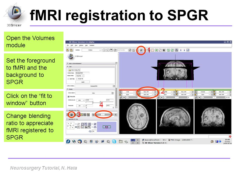fMRI registration to SPGR Set the foreground to fMRI and the background to SPGR Click on the fit to window button Open the Volumes module 1 2 3 4 Neur