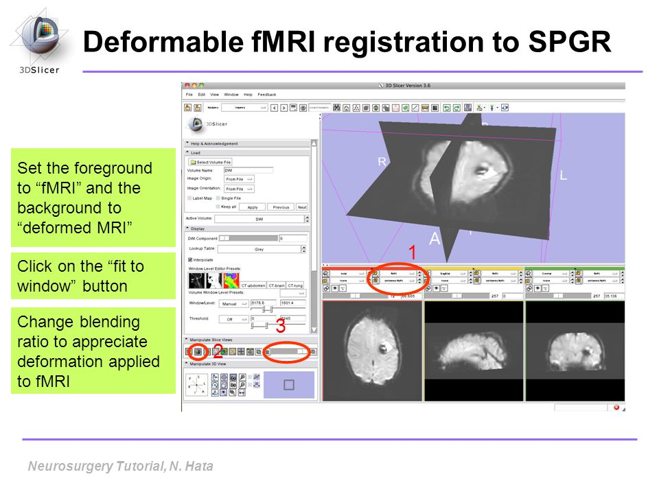 Deformable fMRI registration to SPGR Set the foreground to fMRI and the background to deformed MRI Click on the fit to window button 1 2 3 Neurosurger