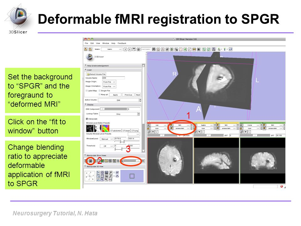 Deformable fMRI registration to SPGR Set the background to SPGR and the foregraund to deformed MRI Click on the fit to window button 1 2 3 Neurosurger
