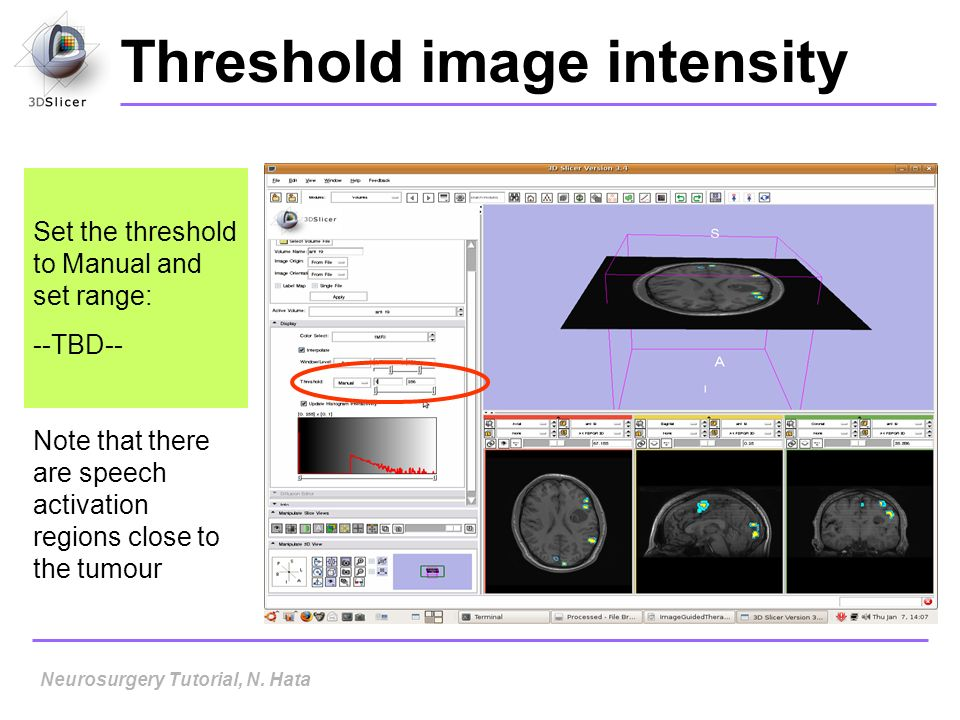 Threshold image intensity Set the threshold to Manual and set range: --TBD-- Note that there are speech activation regions close to the tumour Neurosu
