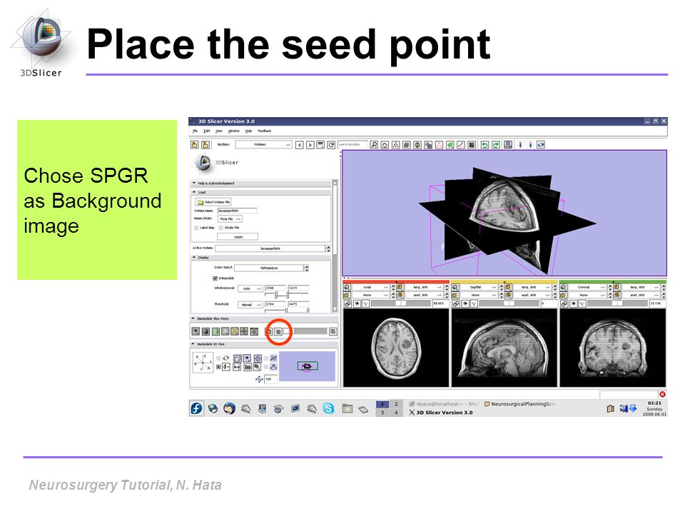 Place the seed point Chose SPGR as Background image Neurosurgery Tutorial, N. Hata