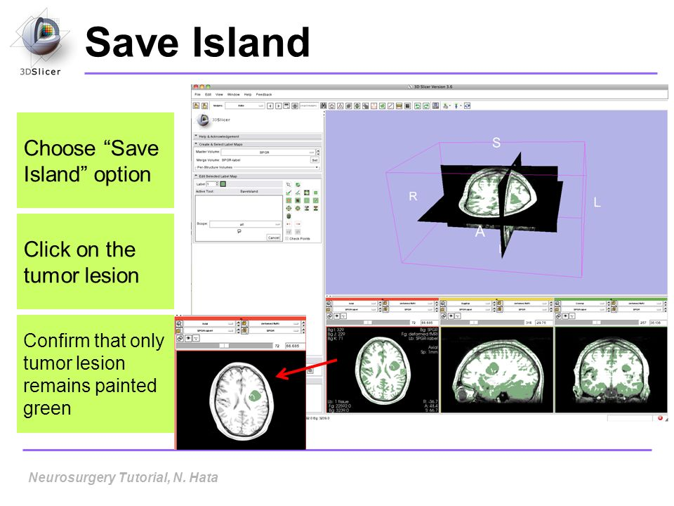 Save Island Neurosurgery Tutorial, N. Hata Choose Save Island option Click on the tumor lesion Confirm that only tumor lesion remains painted green
