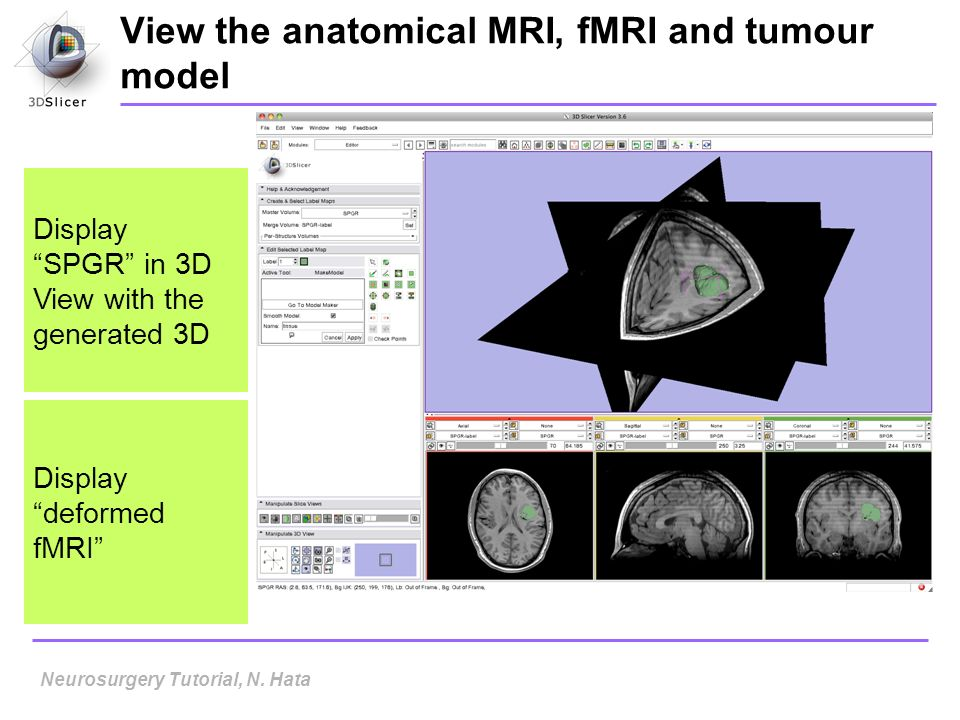 View the anatomical MRI, fMRI and tumour model Display SPGR in 3D View with the generated 3D Neurosurgery Tutorial, N. Hata Display deformed fMRI