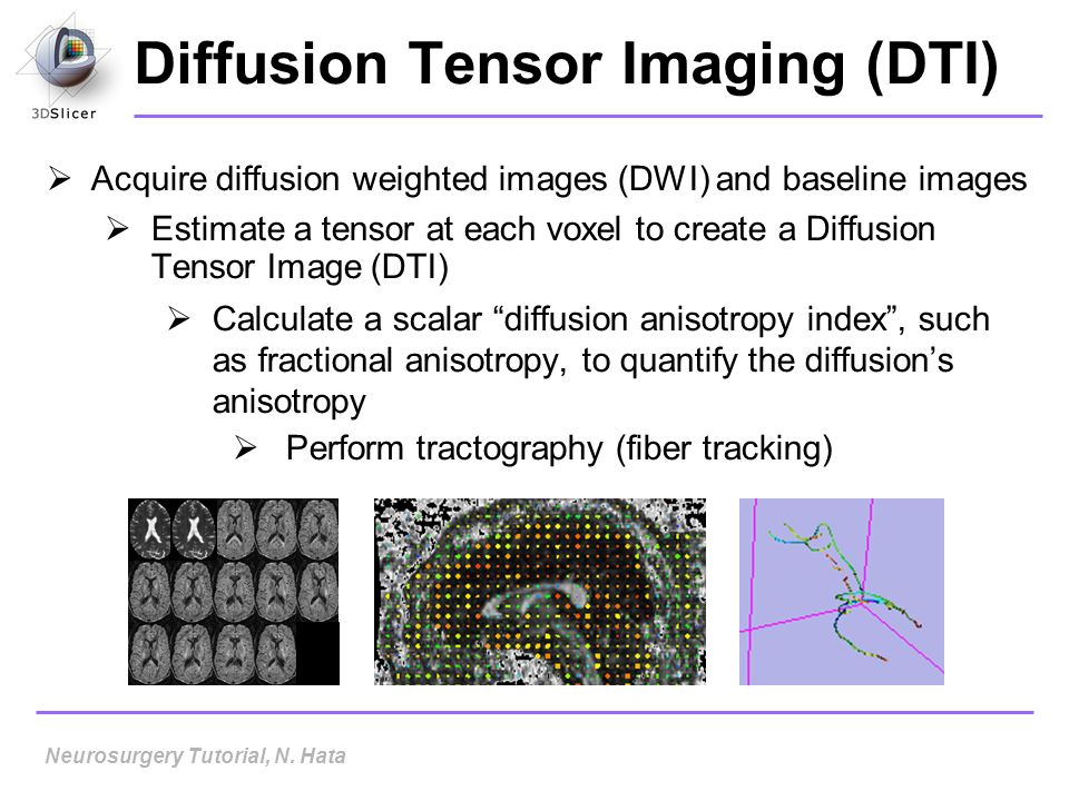 Diffusion Tensor Imaging (DTI) Acquire diffusion weighted images (DWI) and baseline images Estimate a tensor at each voxel to create a Diffusion Tenso