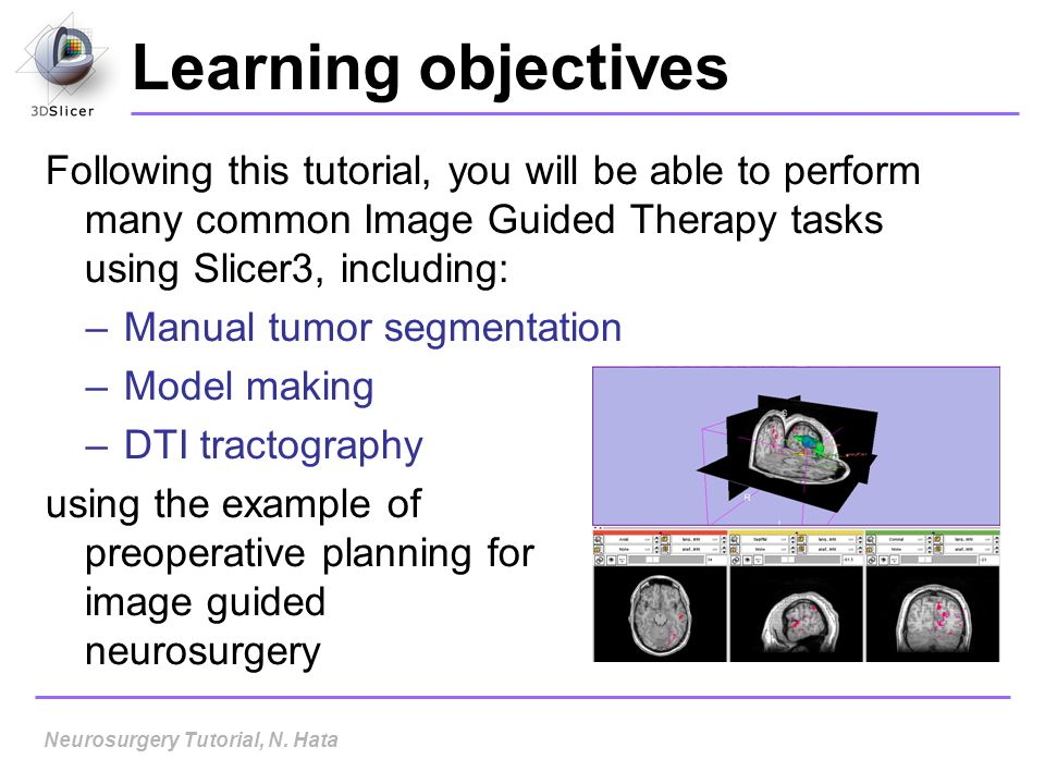 Learning objectives Following this tutorial, you will be able to perform many common Image Guided Therapy tasks using Slicer3, including: –Manual tumo