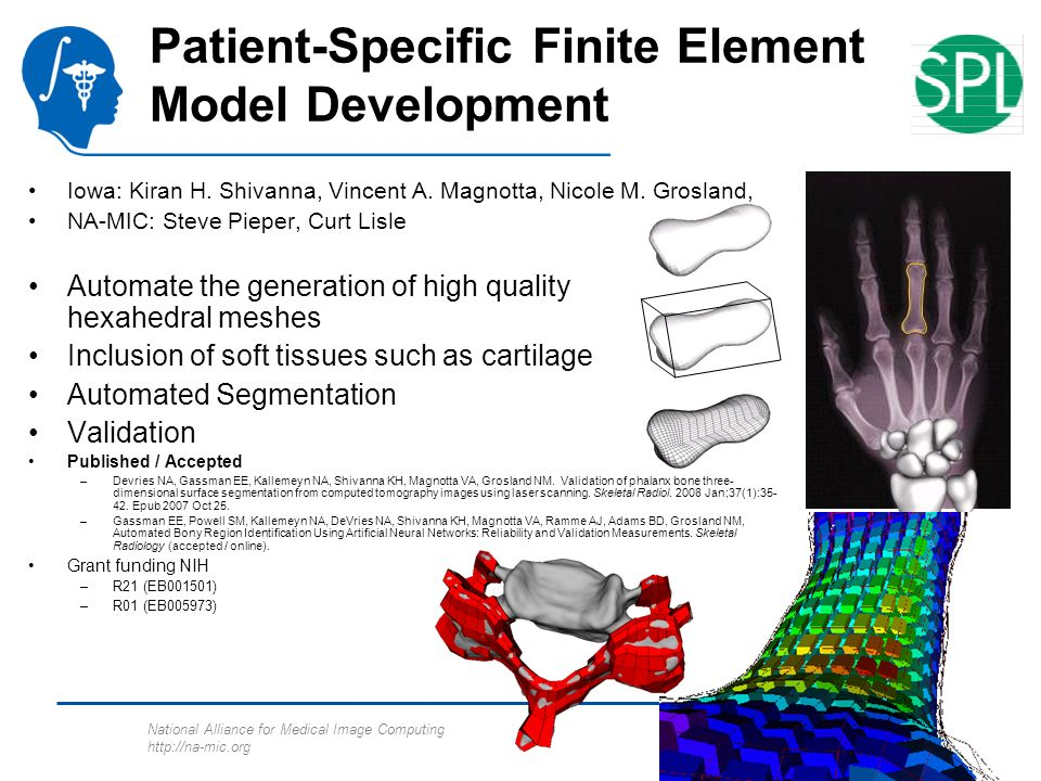 National Alliance for Medical Image Computing http://na-mic.org Patient-Specific Finite Element Model Development Iowa: Kiran H.