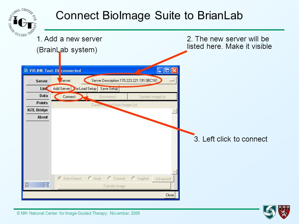 © NIH National Center for Image-Guided Therapy, November, 2008 Connect BioImage Suite to BrianLab 1. Add a new server (BrainLab system) 2. The new ser