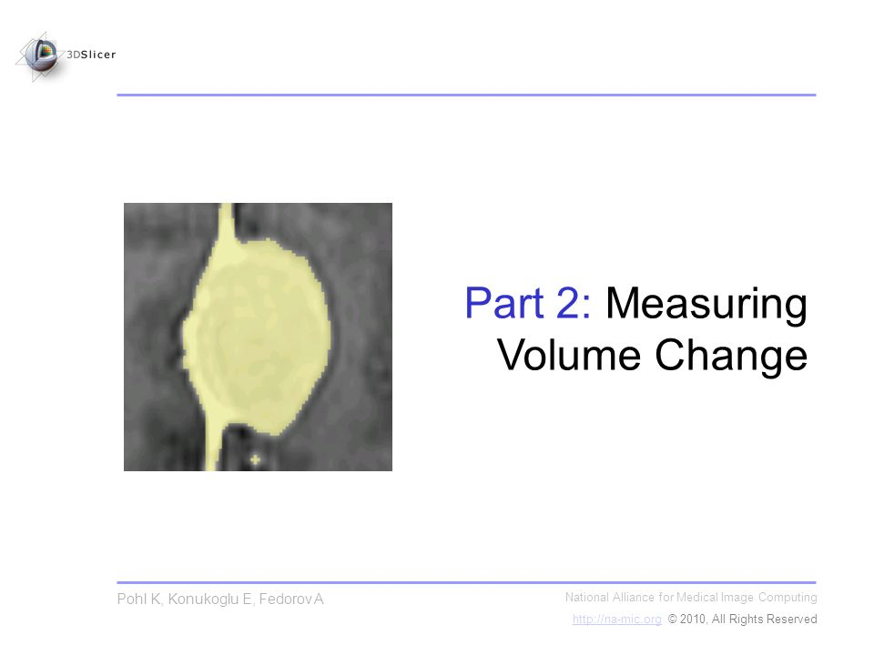 National Alliance for Medical Image Computing http://na-mic.orghttp://na-mic.org © 2010, All Rights Reserved Pohl K, Konukoglu E, Fedorov A Part 2: Measuring Volume Change