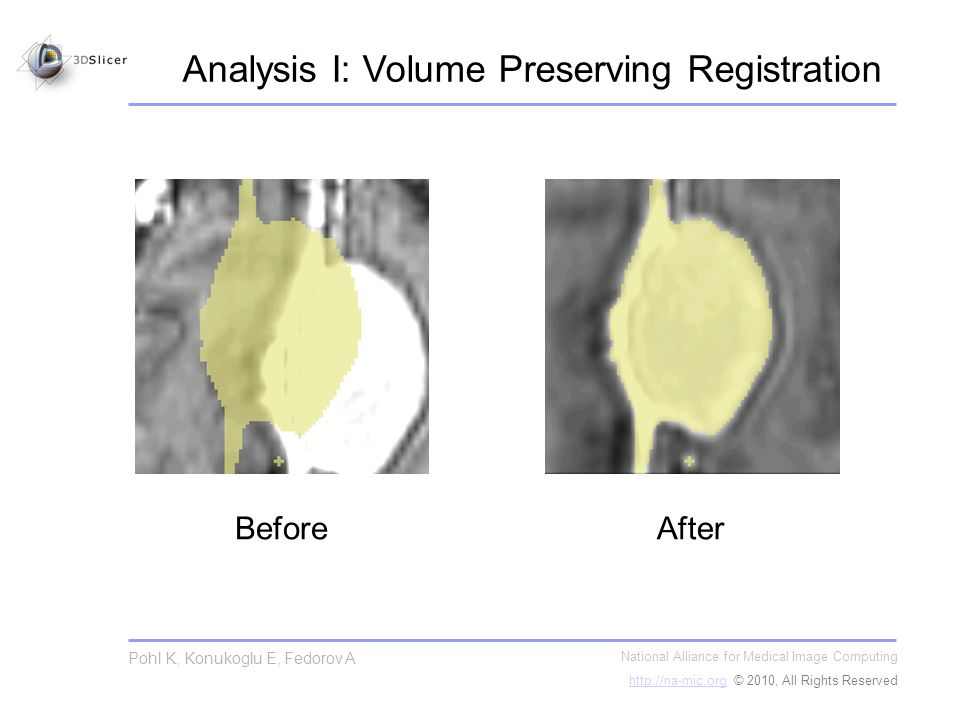 Analysis I: Volume Preserving Registration National Alliance for Medical Image Computing http://na-mic.orghttp://na-mic.org © 2010, All Rights Reserved Pohl K, Konukoglu E, Fedorov A BeforeAfter