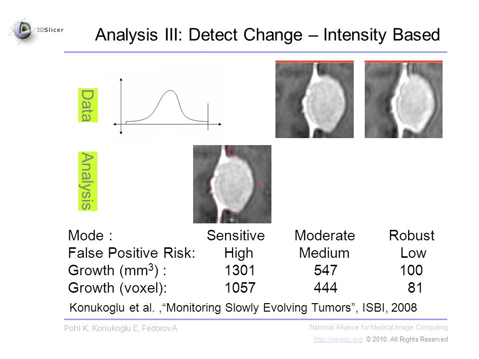 Analysis III: Detect Change – Intensity Based National Alliance for Medical Image Computing   © 2010, All Rights Reserved Pohl K, Konukoglu E, Fedorov A Analysis Data Konukoglu et al.,Monitoring Slowly Evolving Tumors, ISBI, 2008 Mode : Sensitive Moderate Robust False Positive Risk: High Medium Low Growth (mm 3 ) : Growth (voxel):