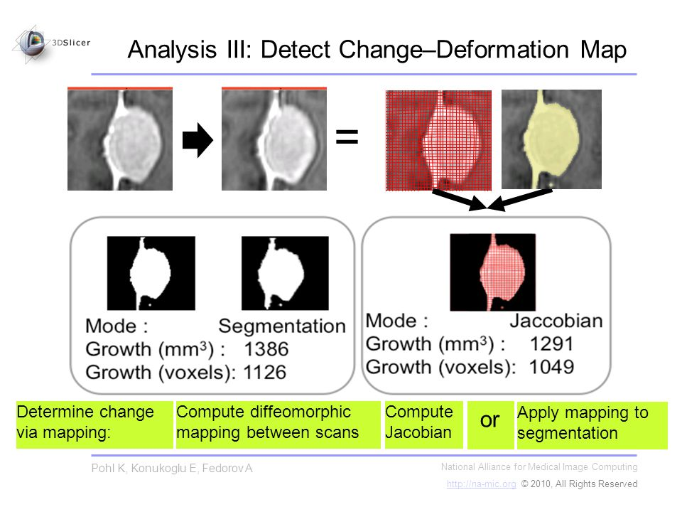 Analysis III: Detect Change–Deformation Map National Alliance for Medical Image Computing   © 2010, All Rights Reserved Pohl K, Konukoglu E, Fedorov A = Determine change via mapping: Compute diffeomorphic mapping between scans Compute Jacobian Apply mapping to segmentation or