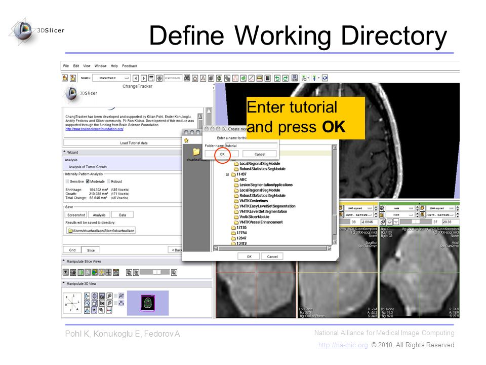 Define Working Directory National Alliance for Medical Image Computing http://na-mic.orghttp://na-mic.org © 2010, All Rights Reserved Pohl K, Konukogl