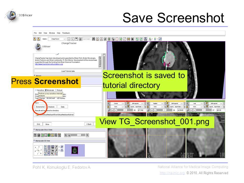Save Screenshot National Alliance for Medical Image Computing http://na-mic.orghttp://na-mic.org © 2010, All Rights Reserved Pohl K, Konukoglu E, Fedo