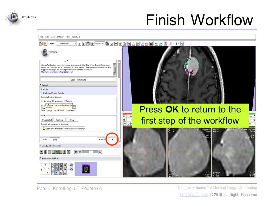 Finish Workflow National Alliance for Medical Image Computing   © 2010, All Rights Reserved Pohl K, Konukoglu E, Fedorov A Press OK to return to the first step of the workflow