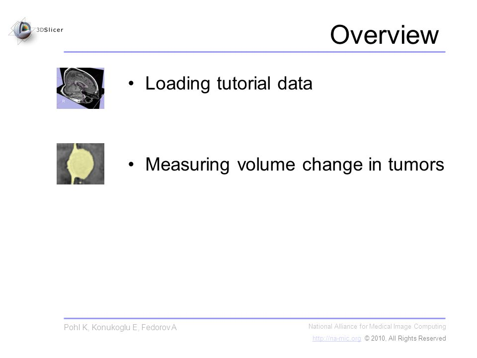 National Alliance for Medical Image Computing http://na-mic.orghttp://na-mic.org © 2010, All Rights Reserved Pohl K, Konukoglu E, Fedorov A Part 1: Loading the tutorial data