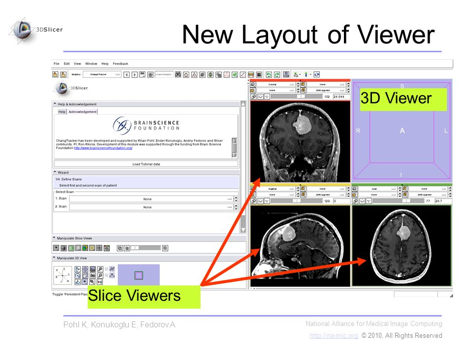 New Layout of Viewer National Alliance for Medical Image Computing   © 2010, All Rights Reserved Pohl K, Konukoglu E, Fedorov A Slice Viewers 3D Viewer