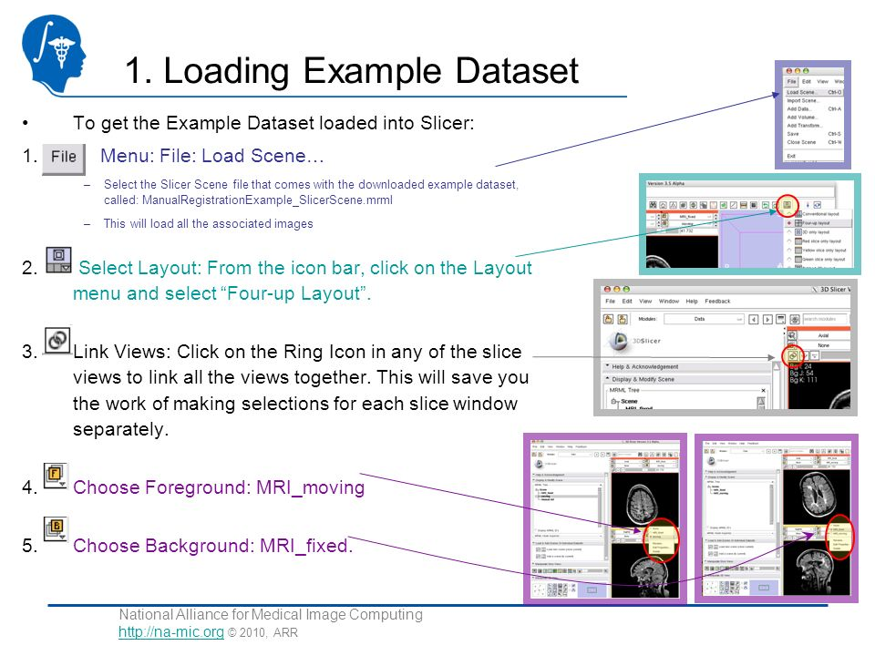 National Alliance for Medical Image Computing http://na-mic.org © 2010, ARR http://na-mic.org 1. Loading Example Dataset To get the Example Dataset lo