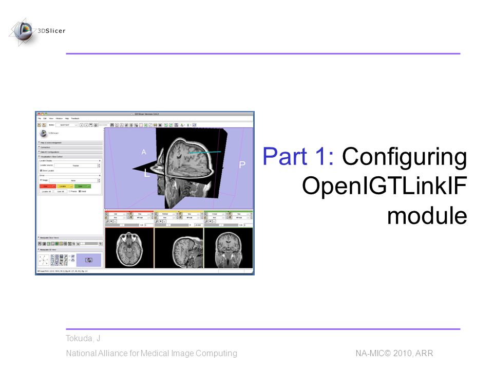 Tokuda, J National Alliance for Medical Image Computing NA-MIC© 2010, ARR Part 1: Configuring OpenIGTLinkIF module