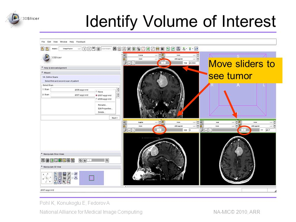Pohl K, Konukoglu E, Fedorov A National Alliance for Medical Image Computing NA-MIC© 2010, ARR Identify Volume of Interest Move sliders to see tumor
