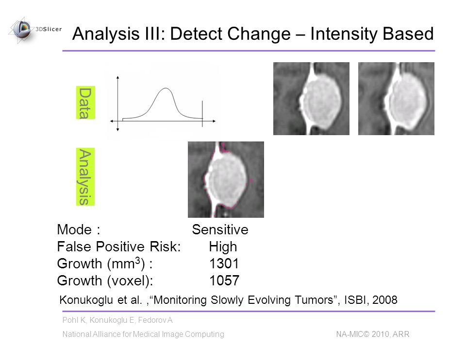 Pohl K, Konukoglu E, Fedorov A National Alliance for Medical Image Computing NA-MIC© 2010, ARR Analysis III: Detect Change – Intensity Based Mode : Se