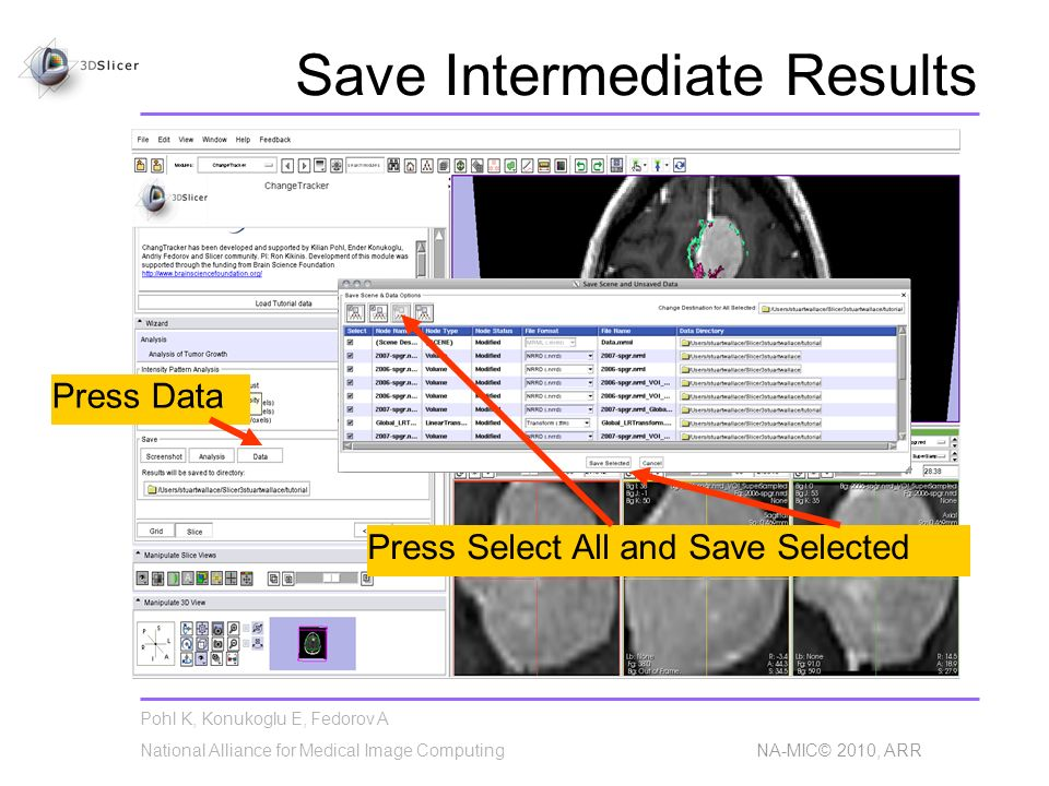 Pohl K, Konukoglu E, Fedorov A National Alliance for Medical Image Computing NA-MIC© 2010, ARR Save Intermediate Results Press Data Press Select All a
