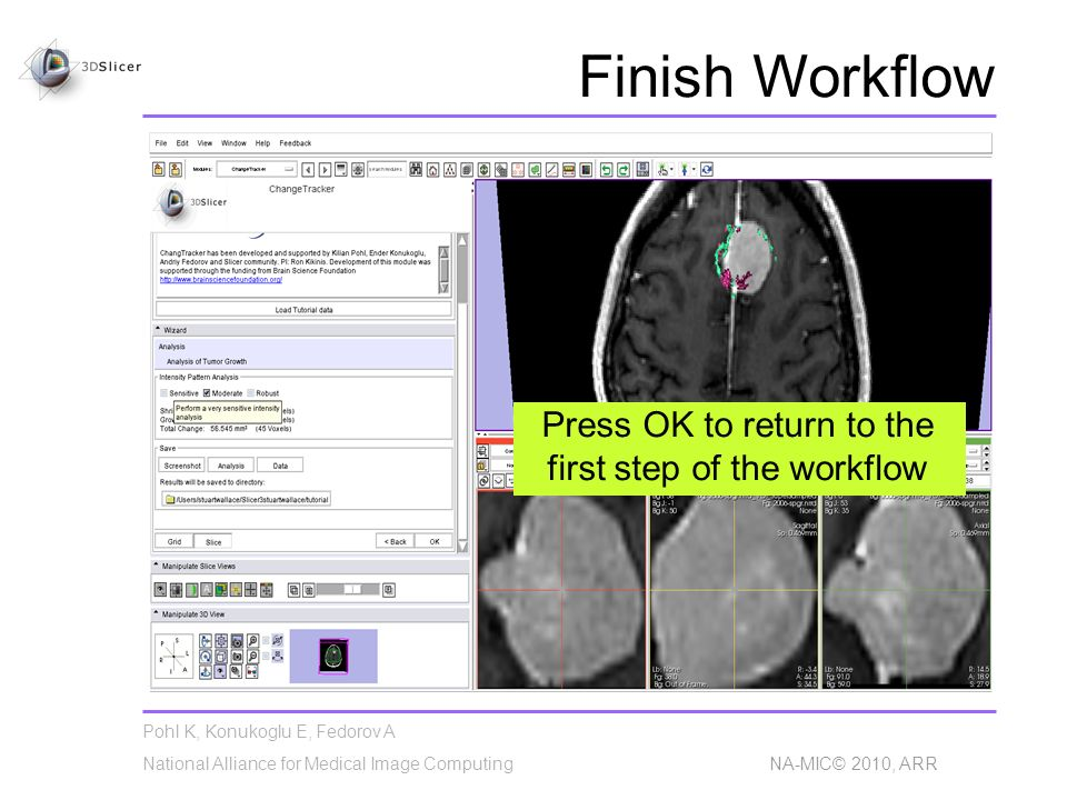 Pohl K, Konukoglu E, Fedorov A National Alliance for Medical Image Computing NA-MIC© 2010, ARR Finish Workflow Press OK to return to the first step of