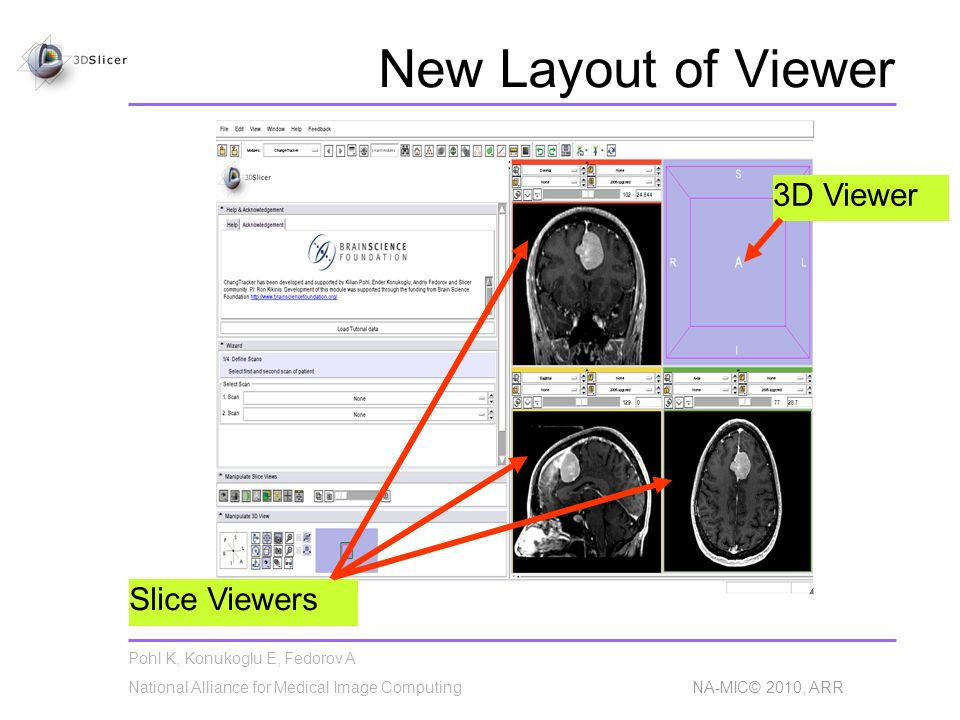 Pohl K, Konukoglu E, Fedorov A National Alliance for Medical Image Computing NA-MIC© 2010, ARR New Layout of Viewer Slice Viewers 3D Viewer