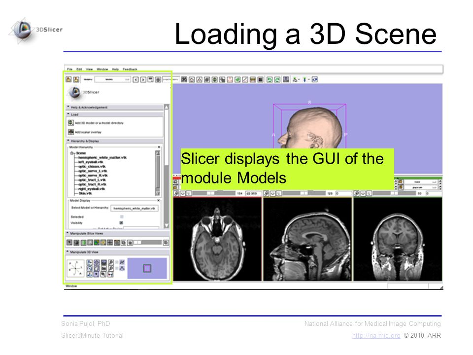 National Alliance for Medical Image Computing http://na-mic.orghttp://na-mic.org © 2010, ARR Sonia Pujol, PhD Slicer3Minute Tutorial Loading a 3D Scene Slicer displays the GUI of the module Models