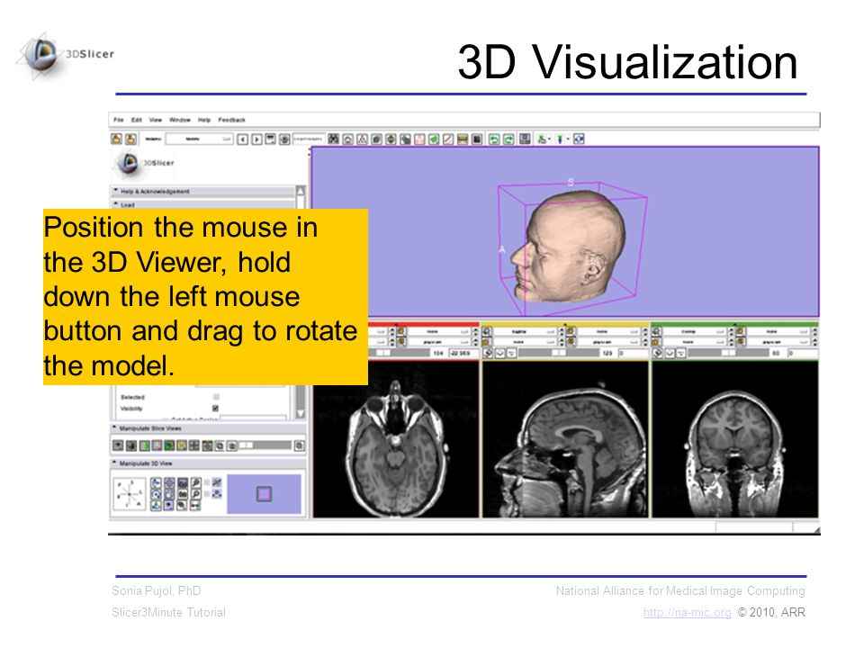 National Alliance for Medical Image Computing http://na-mic.orghttp://na-mic.org © 2010, ARR Sonia Pujol, PhD Slicer3Minute Tutorial 3D Visualization Position the mouse in the 3D Viewer, hold down the left mouse button and drag to rotate the model.