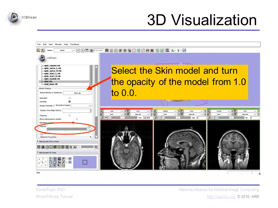 National Alliance for Medical Image Computing http://na-mic.orghttp://na-mic.org © 2010, ARR Sonia Pujol, PhD Slicer3Minute Tutorial 3D Visualization Select the Skin model and turn the opacity of the model from 1.0 to 0.0.