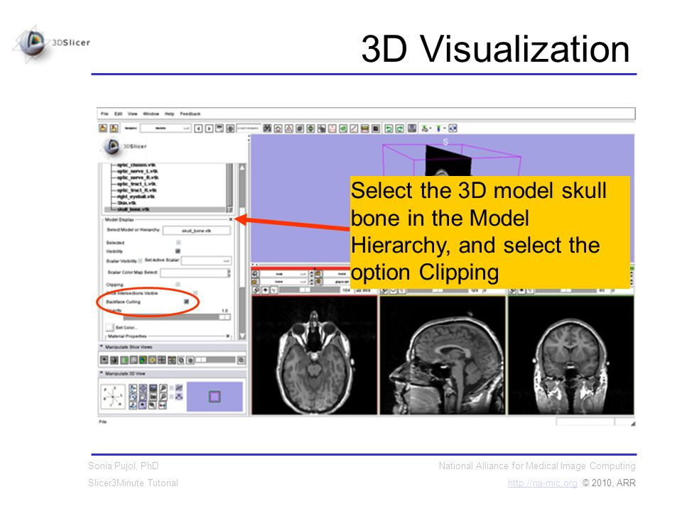National Alliance for Medical Image Computing http://na-mic.orghttp://na-mic.org © 2010, ARR Sonia Pujol, PhD Slicer3Minute Tutorial 3D Visualization Select the 3D model skull bone in the Model Hierarchy, and select the option Clipping