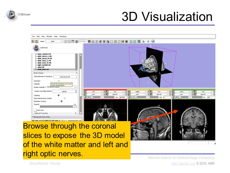 National Alliance for Medical Image Computing http://na-mic.orghttp://na-mic.org © 2010, ARR Sonia Pujol, PhD Slicer3Minute Tutorial 3D Visualization Browse through the coronal slices to expose the 3D model of the white matter and left and right optic nerves.