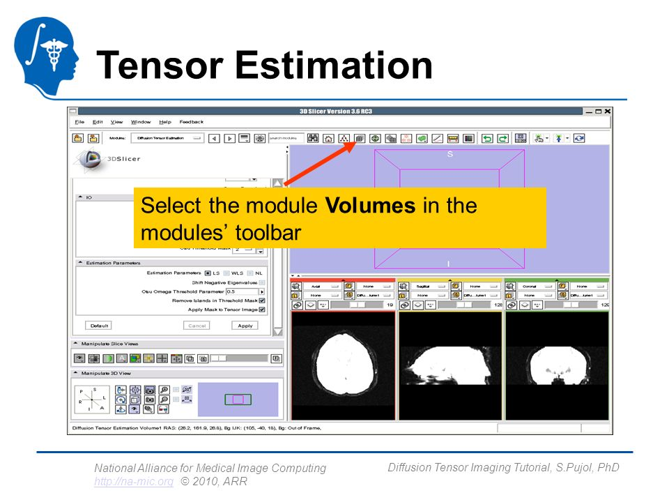 National Alliance for Medical Image Computing http://na-mic.org © 2010, ARR http://na-mic.org Diffusion Tensor Imaging Tutorial, S.Pujol, PhD Tensor Estimation Select the module Volumes in the modules toolbar