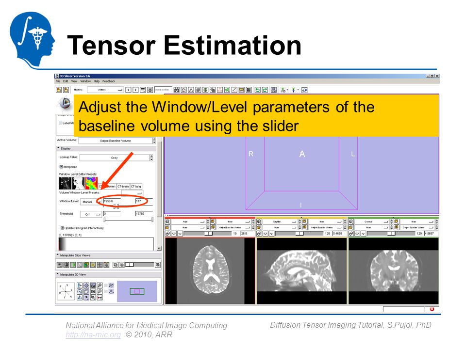 National Alliance for Medical Image Computing http://na-mic.org © 2010, ARR http://na-mic.org Diffusion Tensor Imaging Tutorial, S.Pujol, PhD Tensor Estimation Adjust the Window/Level parameters of the baseline volume using the slider