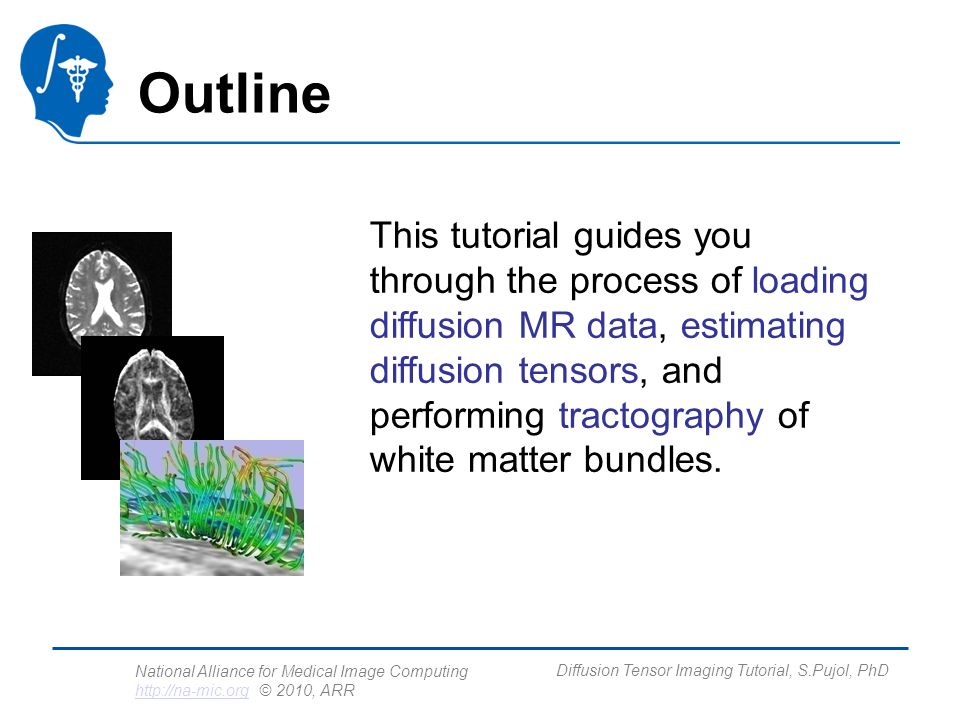 National Alliance for Medical Image Computing http://na-mic.org © 2010, ARR http://na-mic.org Diffusion Tensor Imaging Tutorial, S.Pujol, PhD Loading the DWI volume Select File Add Volume from the File menu