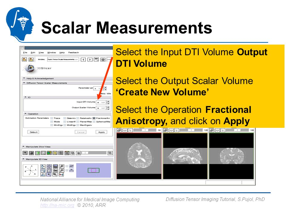 National Alliance for Medical Image Computing http://na-mic.org © 2010, ARR http://na-mic.org Diffusion Tensor Imaging Tutorial, S.Pujol, PhD Scalar Measurements Select the Input DTI Volume Output DTI Volume Select the Output Scalar Volume Create New Volume Select the Operation Fractional Anisotropy, and click on Apply