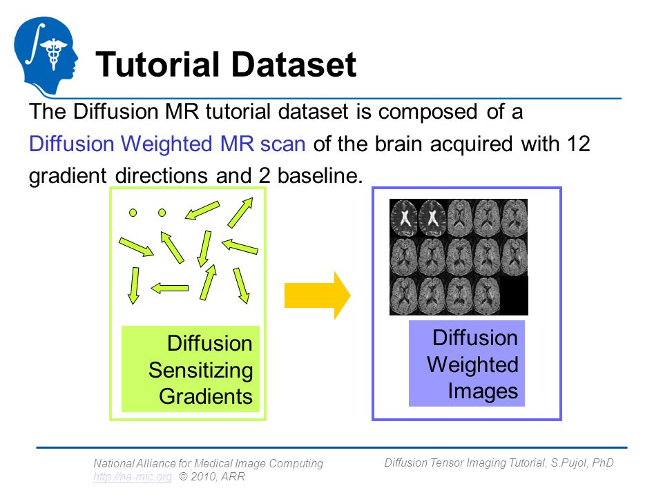 National Alliance for Medical Image Computing http://na-mic.org © 2010, ARR http://na-mic.org Diffusion Tensor Imaging Tutorial, S.Pujol, PhD Loading the DWI volume Left click on the menu Modules and select All Modules to display the list of 95 modules available for image analysis and 3D visualization.