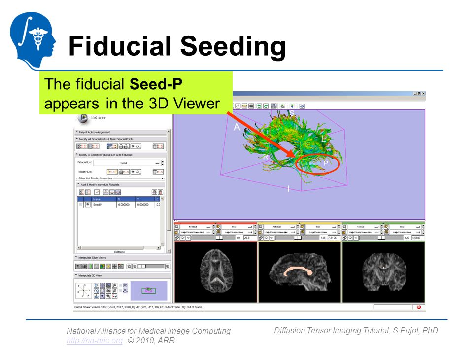 National Alliance for Medical Image Computing http://na-mic.org © 2010, ARR http://na-mic.org Diffusion Tensor Imaging Tutorial, S.Pujol, PhD Fiducial Seeding The fiducial Seed-P appears in the 3D Viewer