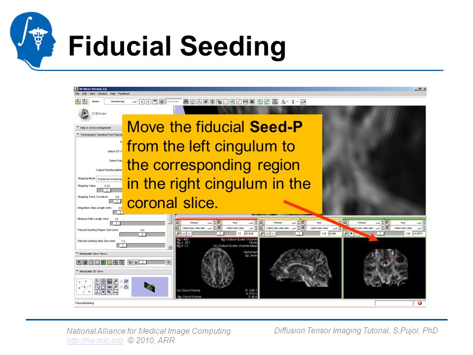 National Alliance for Medical Image Computing http://na-mic.org © 2010, ARR http://na-mic.org Diffusion Tensor Imaging Tutorial, S.Pujol, PhD Fiducial Seeding Move the fiducial Seed-P from the left cingulum to the corresponding region in the right cingulum in the coronal slice.