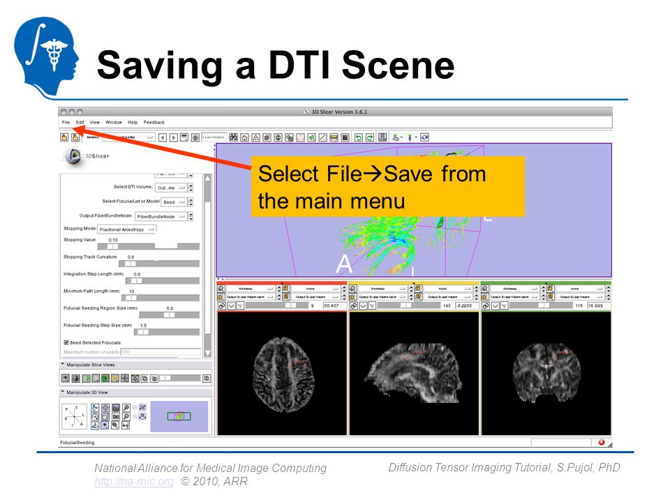 National Alliance for Medical Image Computing http://na-mic.org © 2010, ARR http://na-mic.org Diffusion Tensor Imaging Tutorial, S.Pujol, PhD Saving a DTI Scene Select File Save from the main menu