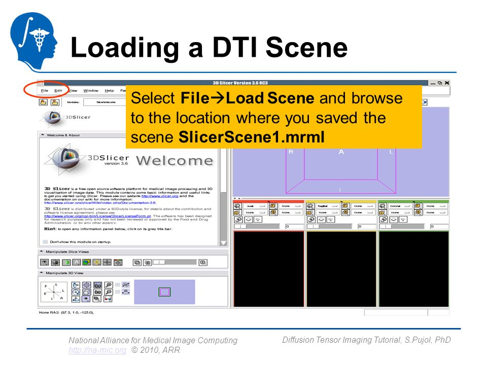 National Alliance for Medical Image Computing http://na-mic.org © 2010, ARR http://na-mic.org Diffusion Tensor Imaging Tutorial, S.Pujol, PhD Loading a DTI Scene Select File Load Scene and browse to the location where you saved the scene SlicerScene1.mrml