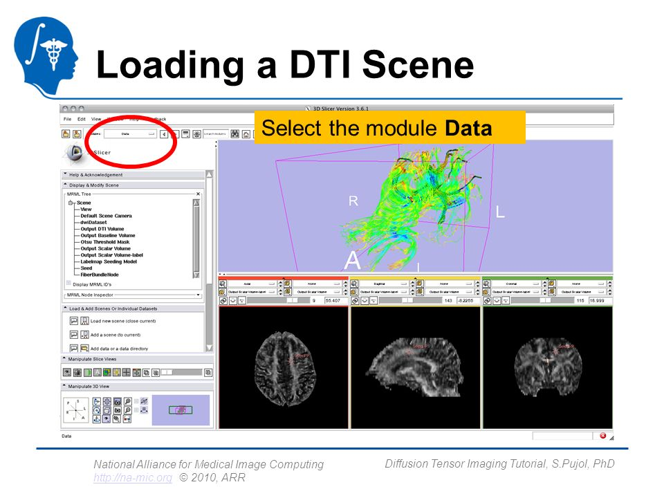 National Alliance for Medical Image Computing http://na-mic.org © 2010, ARR http://na-mic.org Diffusion Tensor Imaging Tutorial, S.Pujol, PhD Loading a DTI Scene Select the module Data