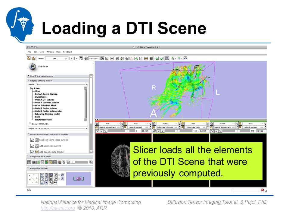National Alliance for Medical Image Computing http://na-mic.org © 2010, ARR http://na-mic.org Diffusion Tensor Imaging Tutorial, S.Pujol, PhD Loading a DTI Scene Slicer loads all the elements of the DTI Scene that were previously computed.
