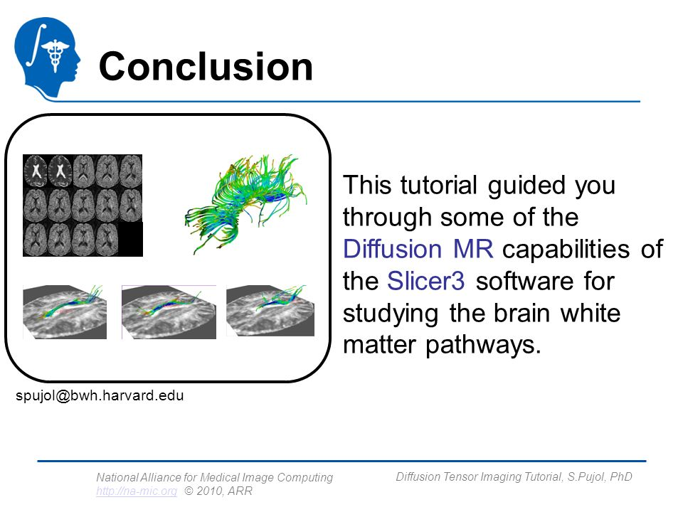 National Alliance for Medical Image Computing http://na-mic.org © 2010, ARR http://na-mic.org Diffusion Tensor Imaging Tutorial, S.Pujol, PhD Conclusion This tutorial guided you through some of the Diffusion MR capabilities of the Slicer3 software for studying the brain white matter pathways.