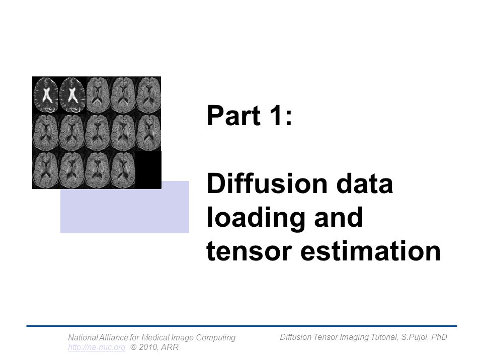 National Alliance for Medical Image Computing http://na-mic.org © 2010, ARR http://na-mic.org Diffusion Tensor Imaging Tutorial, S.Pujol, PhD zzzyzx yzyyyx xzxyxx DDD DDD DDD D=D= Diffusion Tensor (Stejskal and Tanner 1965, Basser 1994 )