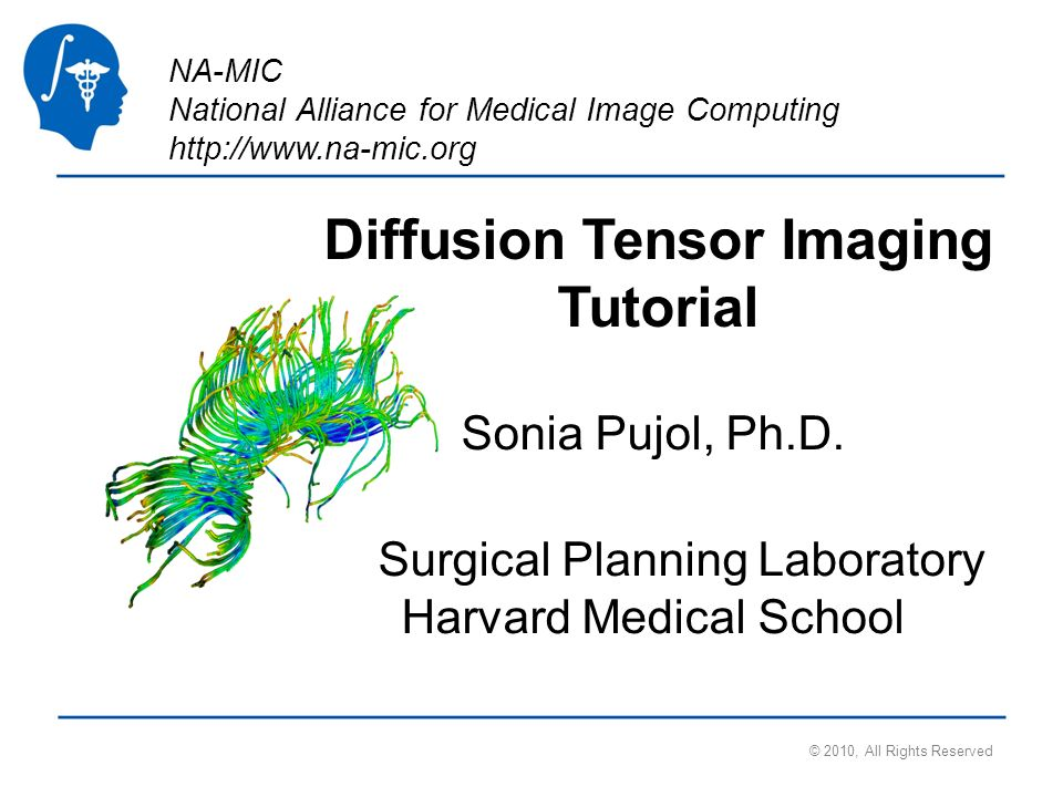 National Alliance for Medical Image Computing http://www.na-mic.org Tensor Estimation Output DTI Volume is the volume of estimated tensors Output Baseline Volume is the Baseline volume Output Threshold Mask is the tensor mask (blue) © 2010, All Rights Reserved