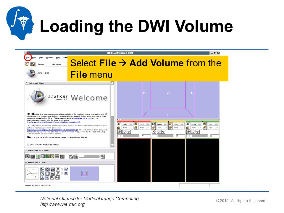 National Alliance for Medical Image Computing http://www.na-mic.org Select File Add Volume from the File menu Loading the DWI Volume © 2010, All Right