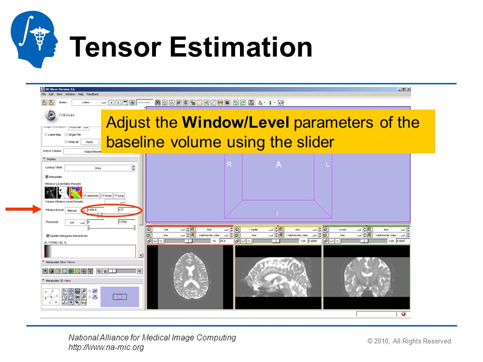 National Alliance for Medical Image Computing http://www.na-mic.org Tensor Estimation Adjust the Window/Level parameters of the baseline volume using
