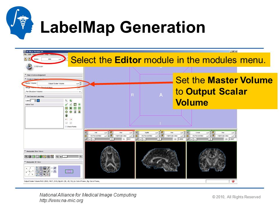 National Alliance for Medical Image Computing http://www.na-mic.org Select the Editor module in the modules menu. Set the Master Volume to Output Scal